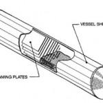 Defoaming Plates Separator
